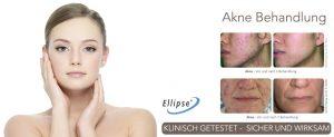 Neu: Behandlung von Akne in der Ordination von Dr. Margot Venetz-Ruzicka